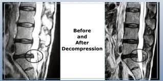 Before and After with Spinal Decompression